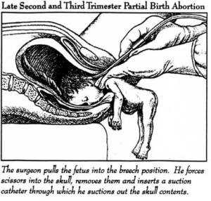 """Will anything convince you that you've been sold a lie when it comes to abortion """"rights?"""""""